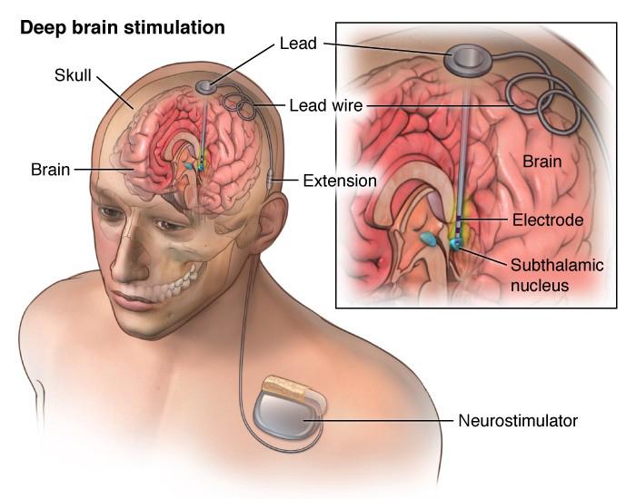 Имплант глубокой мозговой симуляции.