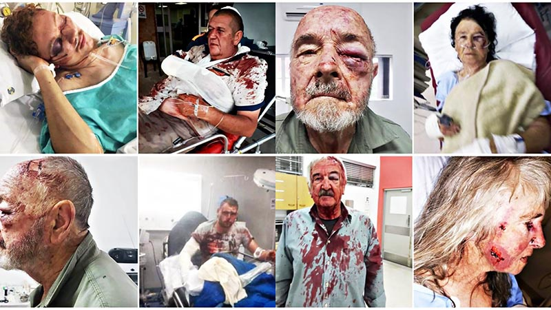 Фото жертв насилия среди белых фермеров.