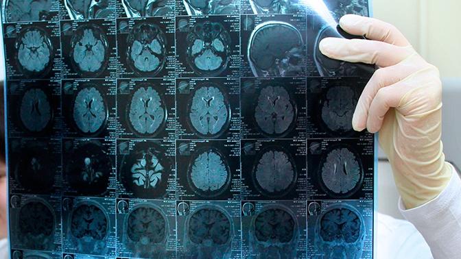 Назван способ снизить шансы развития болезни Альцгеймера
