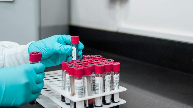 В Роспотребнадзоре рассказали, как отличить аллергию от коронавируса