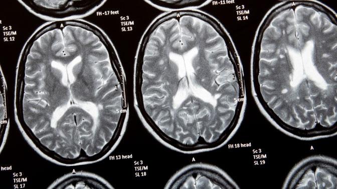 Болезнь молодых: эксперт рассказал о специфике заболевания рассеянным склерозом