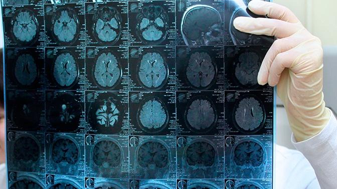 Победить глиобластому: врачи нашли способ лечения болезни Фриске и Хворостовского