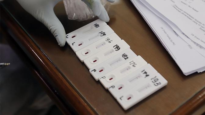 В Роспотребнадзоре рассказали, сколько россиян обследовалось на иммунитет к COVID-19