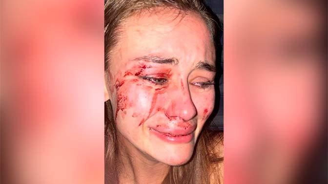 Украинской топ-модели разбили лицо на пляже в Турции