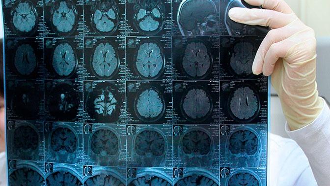 Назван неожиданный предвестник опухоли мозга