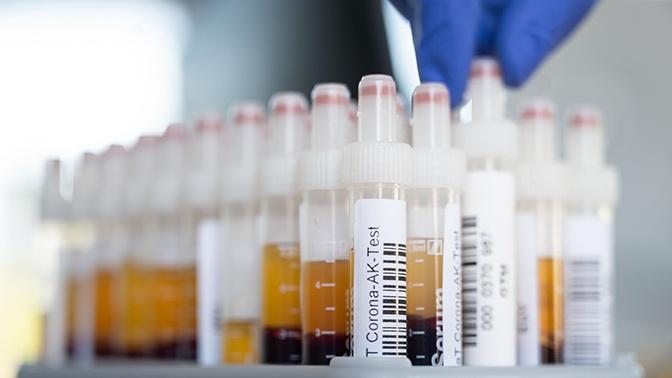 Собянин призвал продержаться до вакцинации