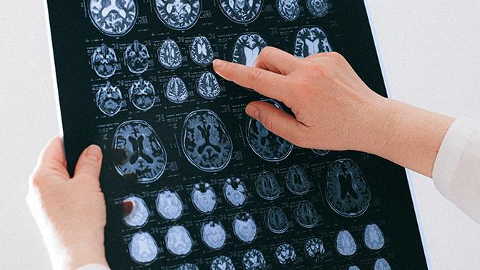 Ученые нашли в организме человека неизвестный науке орган