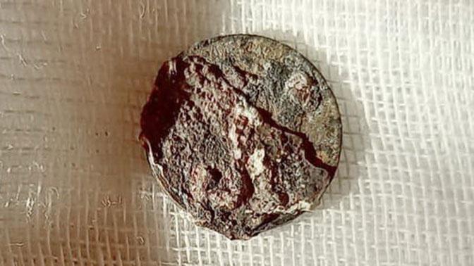 Врачи в Зеленограде извлекли из носа пациента монету, находившуюся там более 50 лет