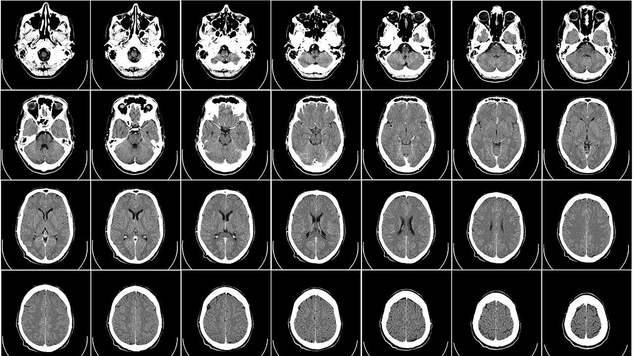 Вспомнить о здоровье: о каких болезнях может говорить ухудшение памяти