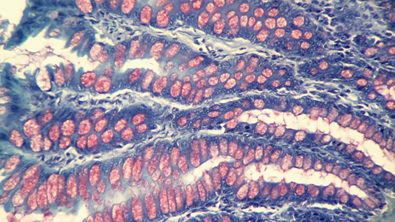 В кишечнике человека обнаружили свыше 140 тысяч видов вирусов