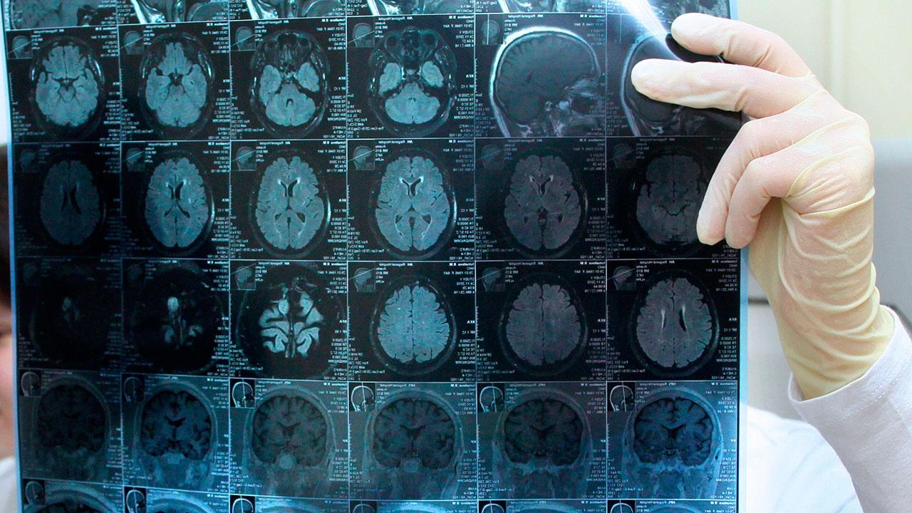 Загадочное заболевание мозга озадачило канадских врачей