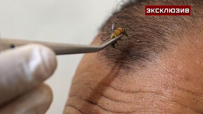 Врач рассказала, кому строго противопоказано лечение пчелиными укусами