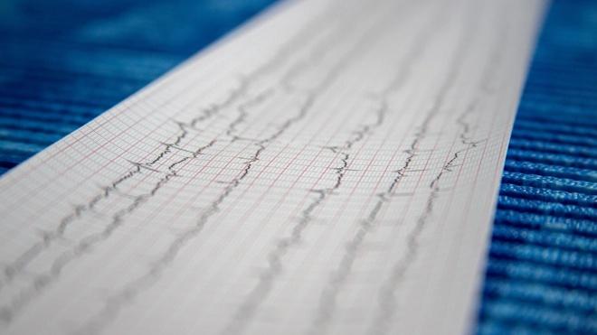 Мясников назвал неочевидные факторы развития инфаркта