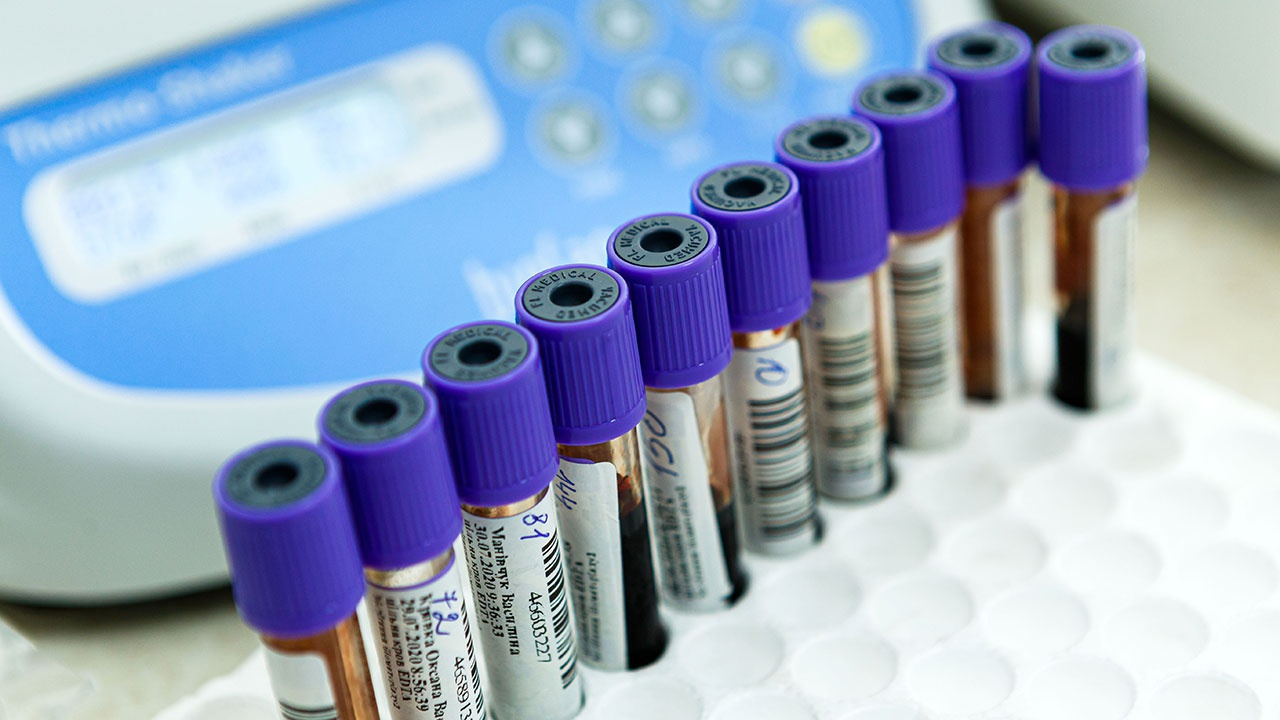 Мурашко: менее 1% людей заболевают COVID-19 после вакцинации