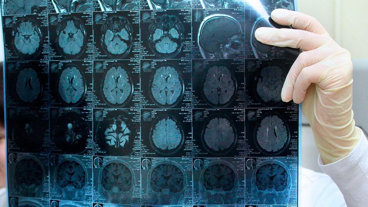 Ученые обнаружили два новых вида клеток головного мозга