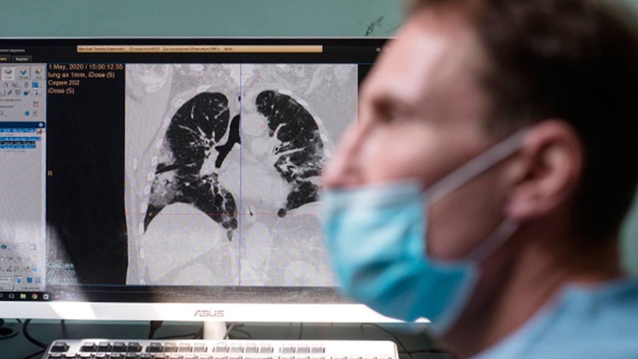 Названы пять неожиданных признаков рака легких