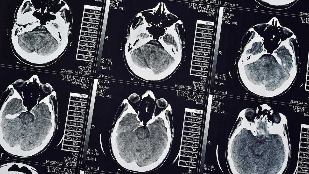 Ученые: у переболевших COVID-19 может снижаться уровень интеллекта